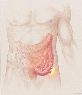 Diverticulitis_diagram