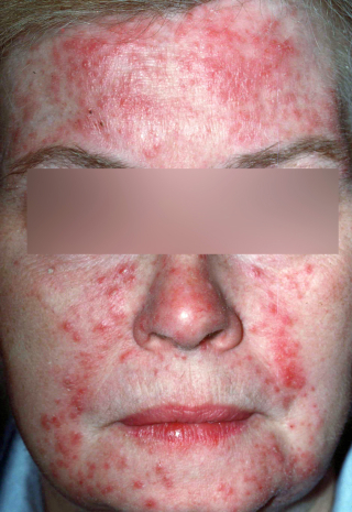 Rosacea - papules and pustules